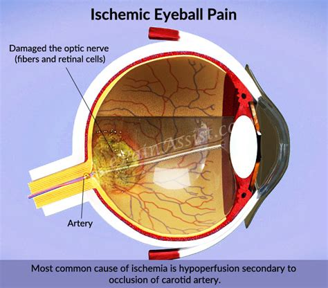 ocular aging and eye pain picture 3