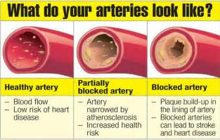 blood vessel or arteries blocked from calcium any picture 1