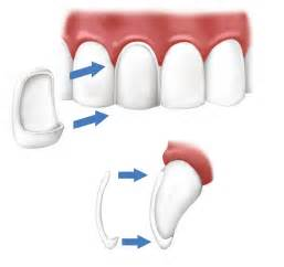 can dental hygienist remove cement from h with picture 4