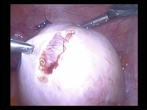 mx3 capsule and ovarian cyst picture 9