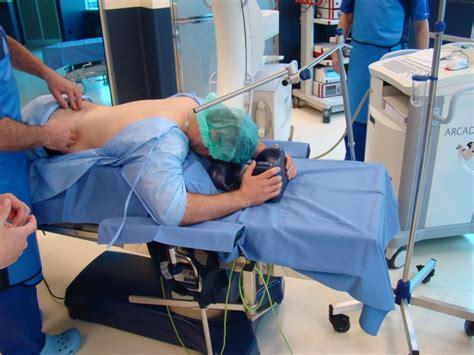 hemorrhoids lazer picture 2