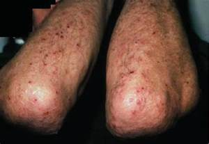 acne caused by prednisone picture 10