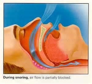 sleep apnea and pregnancy picture 14