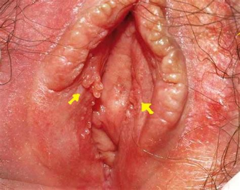 dry skin in vagina area picture 2