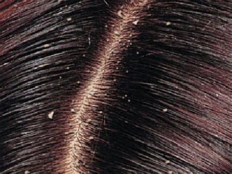 residue in scalp hair that reacts to air picture 11