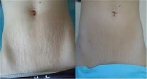 cool beam laser stretch marks reviews picture 7