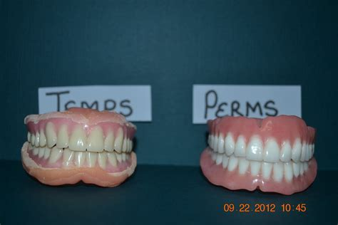 false teeth permanent picture 5