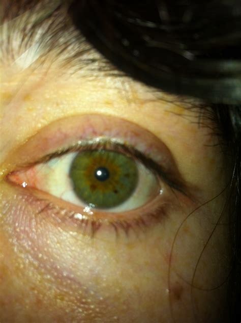 liver and eye s picture 9