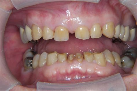 can a bad tooth cause you to have picture 5
