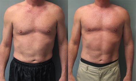 testosterone replacement therapy gynecomastia picture 3