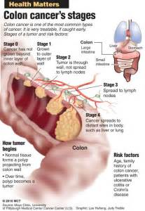 back pain caused by colon tumor picture 8