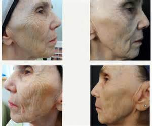 before and after micro needling side effects picture 2