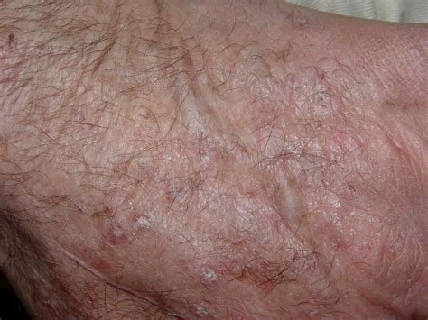 spots underneath skin picture 3