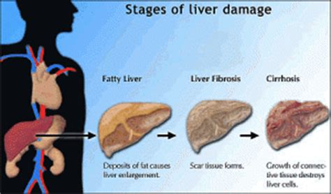 what are fatty liver cysts picture 3