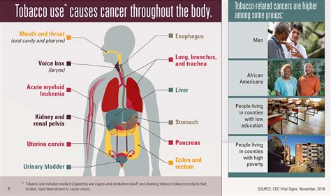 cigar smoke cause cancer lower count picture 9