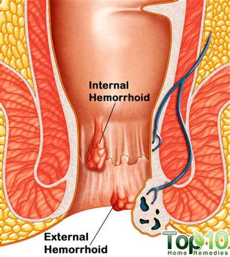 relieve hemorrhoid pain home remedy picture 10