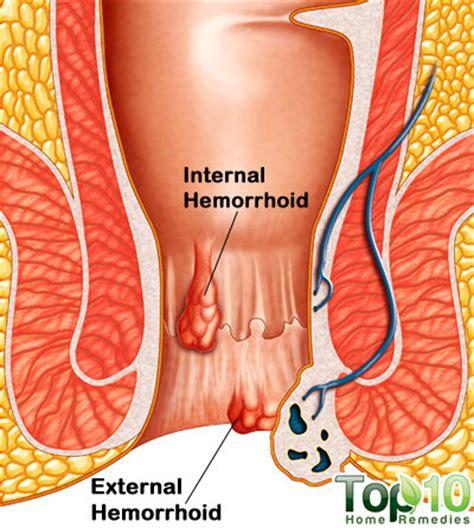 hemorrhoid treatment with anurex picture 2