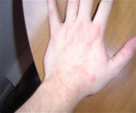 hive treatment picture 2