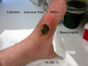 skin condition mrsa boils picture 1