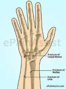joint and wrist pain picture 1