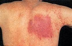 is herpes typically a cluster and medhelp picture 13
