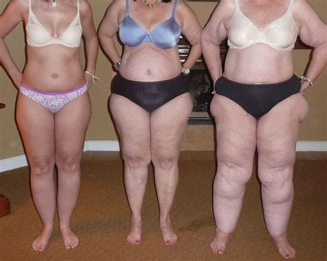 subcutaneous fat and cellulite picture 10