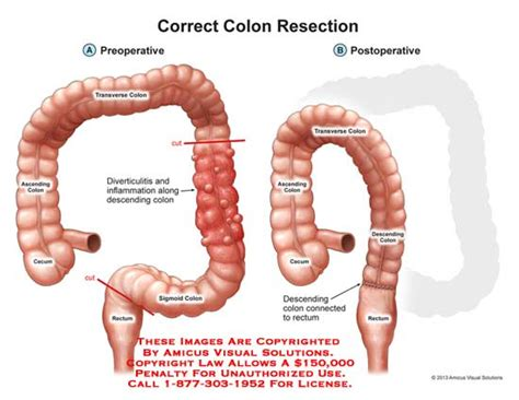 colon suregy picture 1