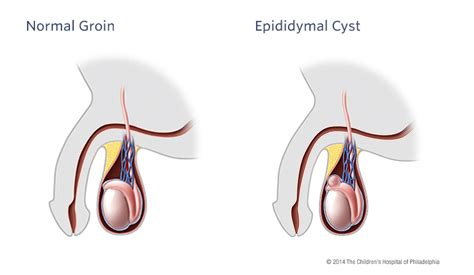 herbs epididymis cysts picture 2