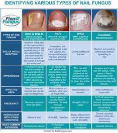 what vitamin help fungus under your nails picture 4