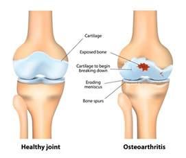 canine osteoarthritis degenerative joint disease picture 11