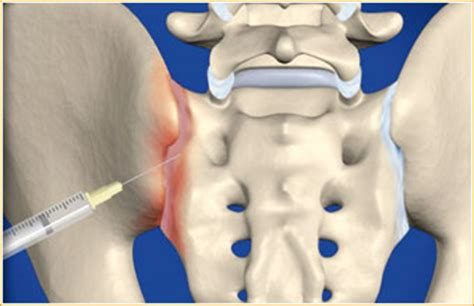 bilateral facet joint injection picture 9