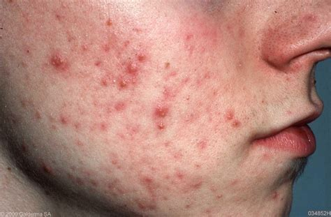 acne vulgaris pictures picture 11