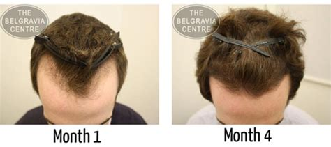 propecia for hair loss picture 3