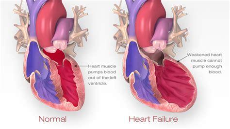congestive heart failure diet picture 6