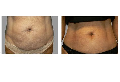 cellulite removial picture 11