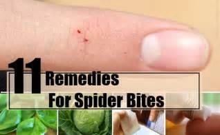 spider bite home remedy picture 2