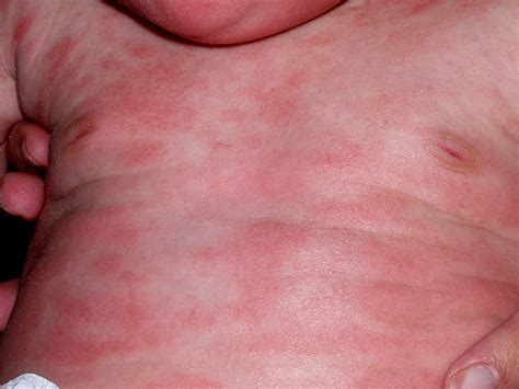 genital warts apperence picture 2