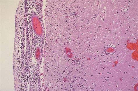 manegitis simptoms picture 3