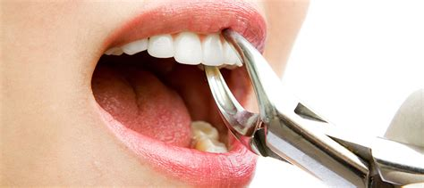 cost of dentures and pulling teeth alabama picture 11