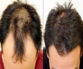 treatment of hair loss ketoconazole picture 6