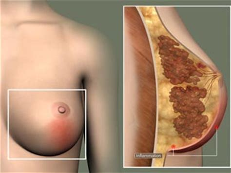 bacterial breast infection picture 14