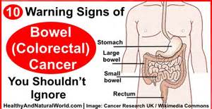 colon cancer warning signs picture 2