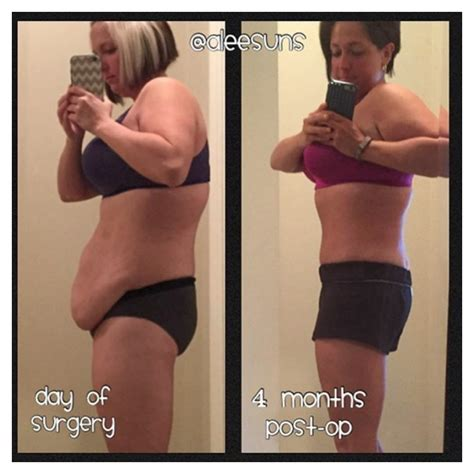 weight loss ps under skin picture 1