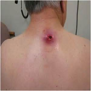 using oregano on skin cysts picture 7