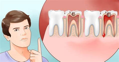 relief from tooth ache picture 6