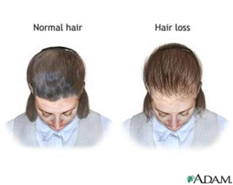 can acuzyrt tablets cause hair loss picture 2