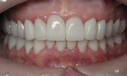 fort worth teeth whitening picture 11