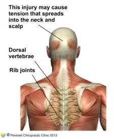 pain between the shoulder blades and indigestion picture 1