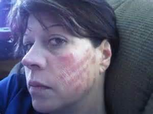 the consequences of laser skin surgery picture 6