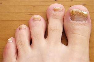 my toes nails are yellowish and the skin under the front picture 9
